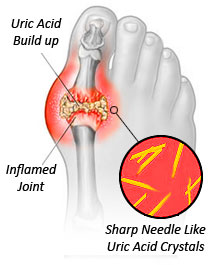 Goutproof: podagra image chronic gout