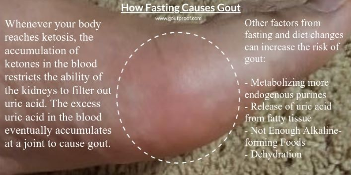 Picture goutproof - Fasting causes gout at toe